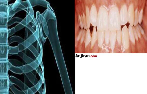 افزایش سلامت استخوان دندان